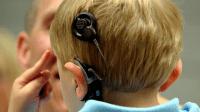 Implan Koklea Pada Anak